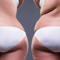 Hypnosis Gastric Band